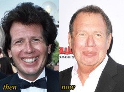 Garry-Shandling-Plastic-surgery-Before-and-After-e1413156398840.jpg