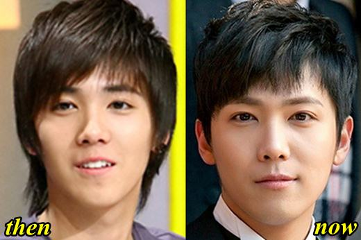 Plastic Surgery Before And After Korean Celebrities